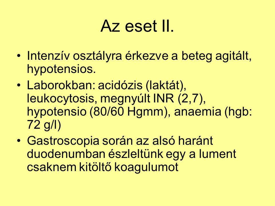Az eset II. Intenzív osztályra érkezve a beteg agitált, hypotensios.
