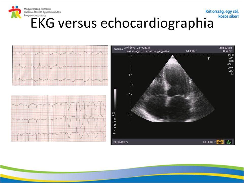 EKG versus echocardiographia