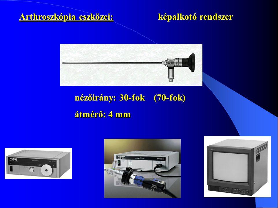 Arthroszkópia eszközei: