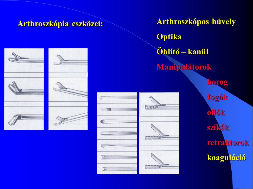 Arthroszkópos hüvely Optika. Öblítő – kanül. Manipulátorok. horog. fogók. ollók. szikék. retraktorok.