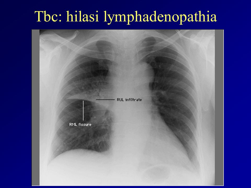 Tbc: hilasi lymphadenopathia