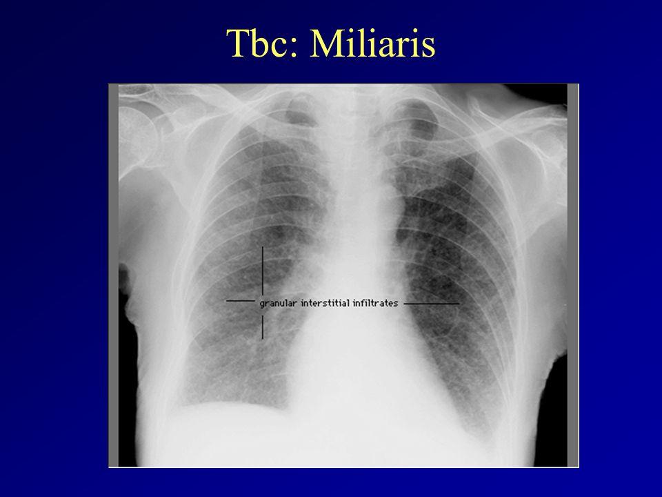 Tbc: Miliaris
