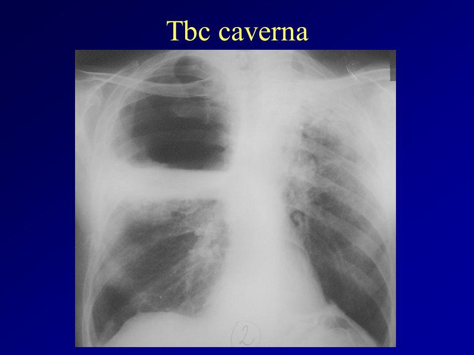 Tbc caverna