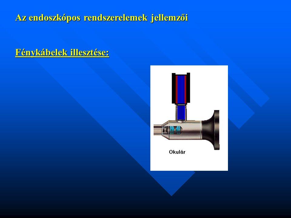 Az endoszkópos rendszerelemek jellemzői