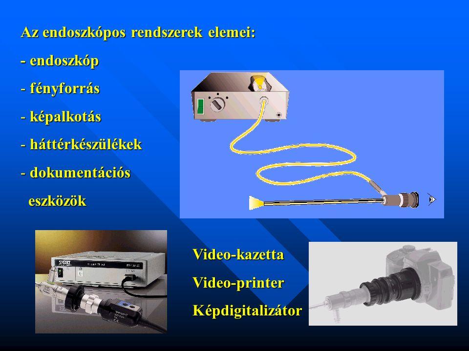 Az endoszkópos rendszerek elemei: