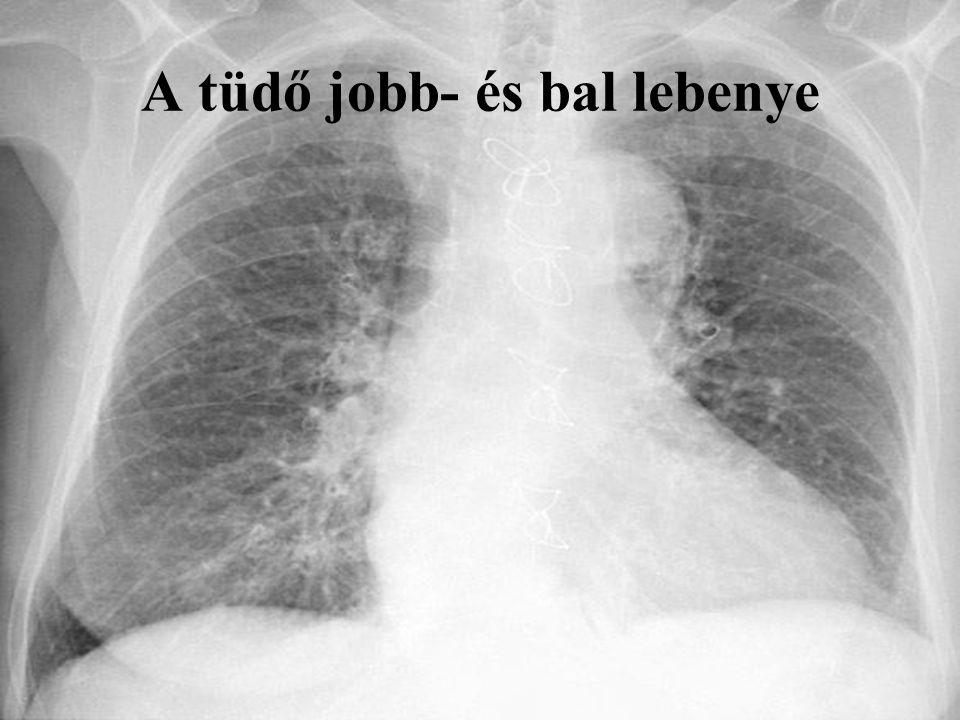 A tüdő jobb- és bal lebenye