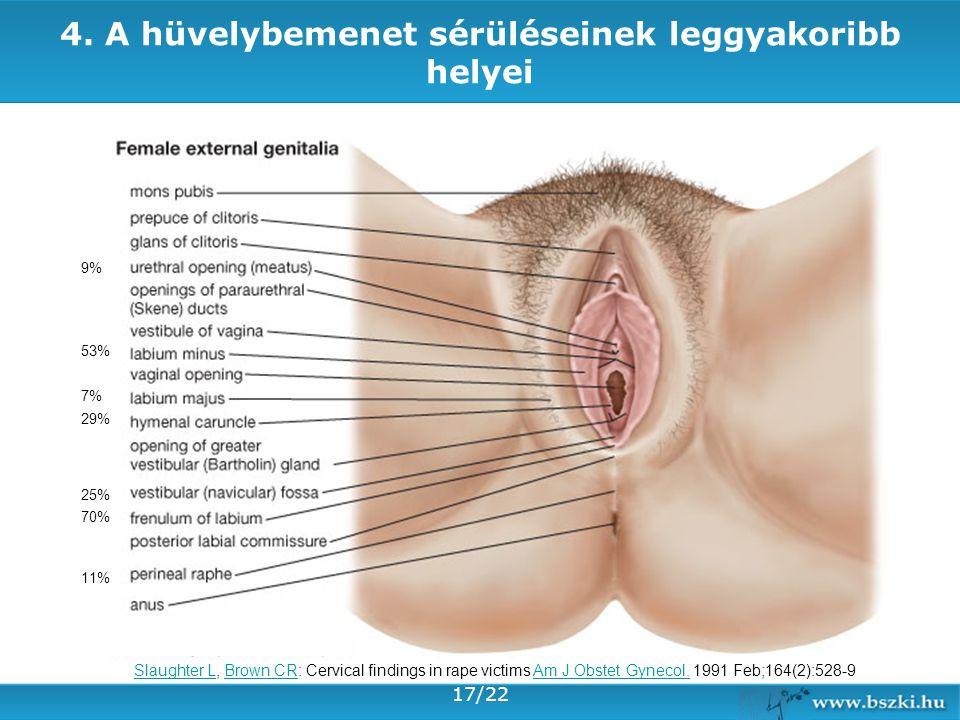 4. A hüvelybemenet sérüléseinek leggyakoribb helyei