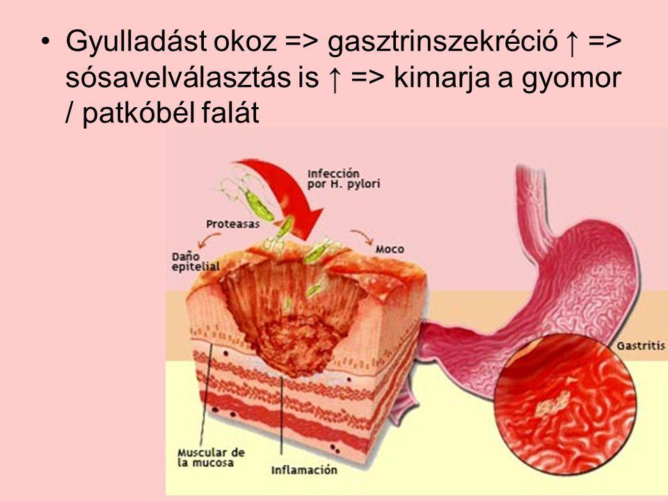 Gyulladást okoz => gasztrinszekréció ↑ => sósavelválasztás is ↑ => kimarja a gyomor / patkóbél falát