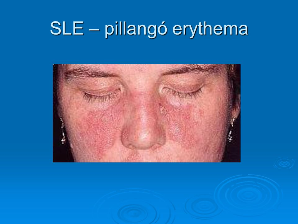 SLE – pillangó erythema