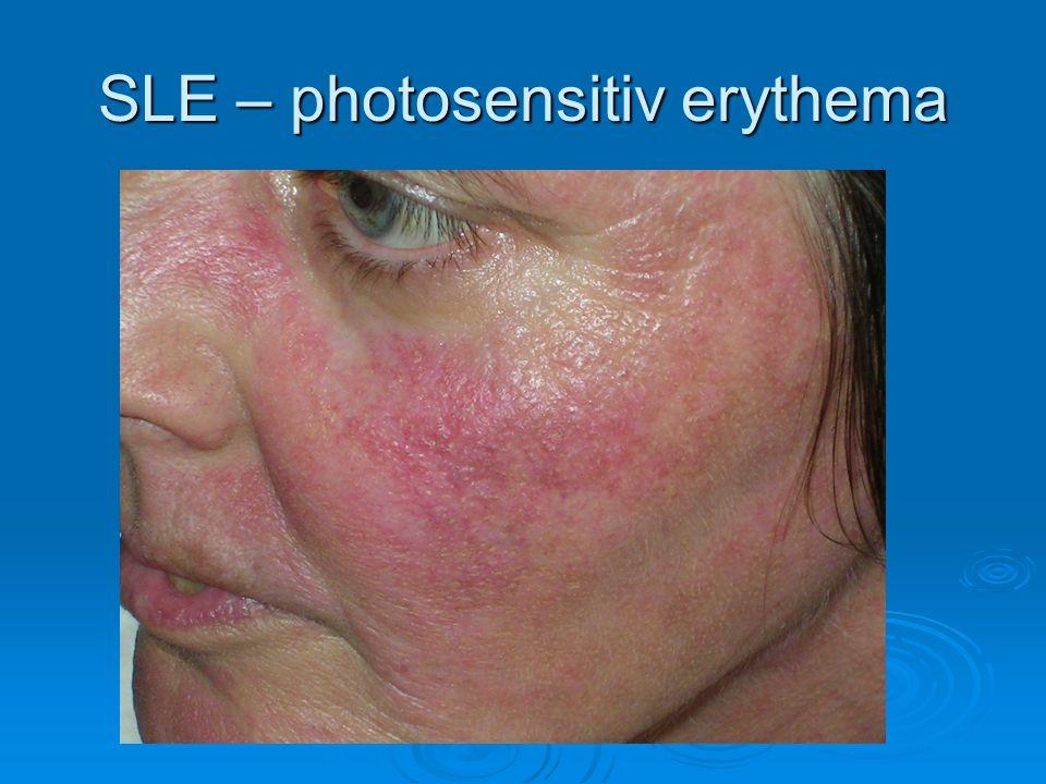 SLE – photosensitiv erythema