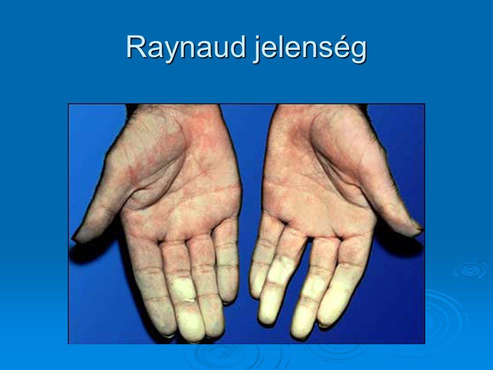 Raynaud jelenség