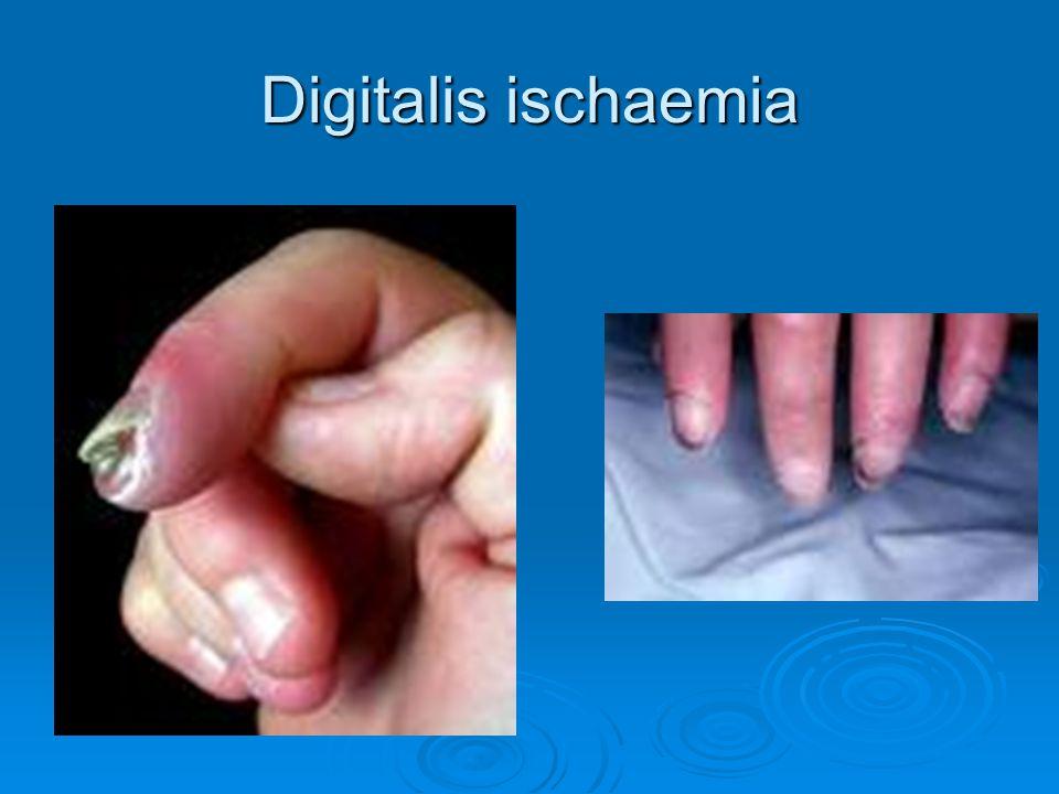Digitalis ischaemia