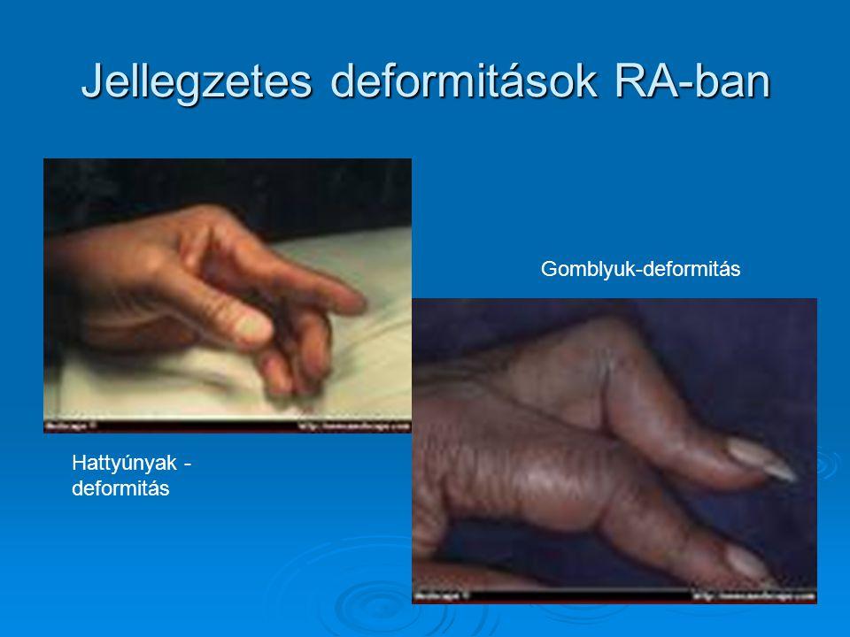 Jellegzetes deformitások RA-ban
