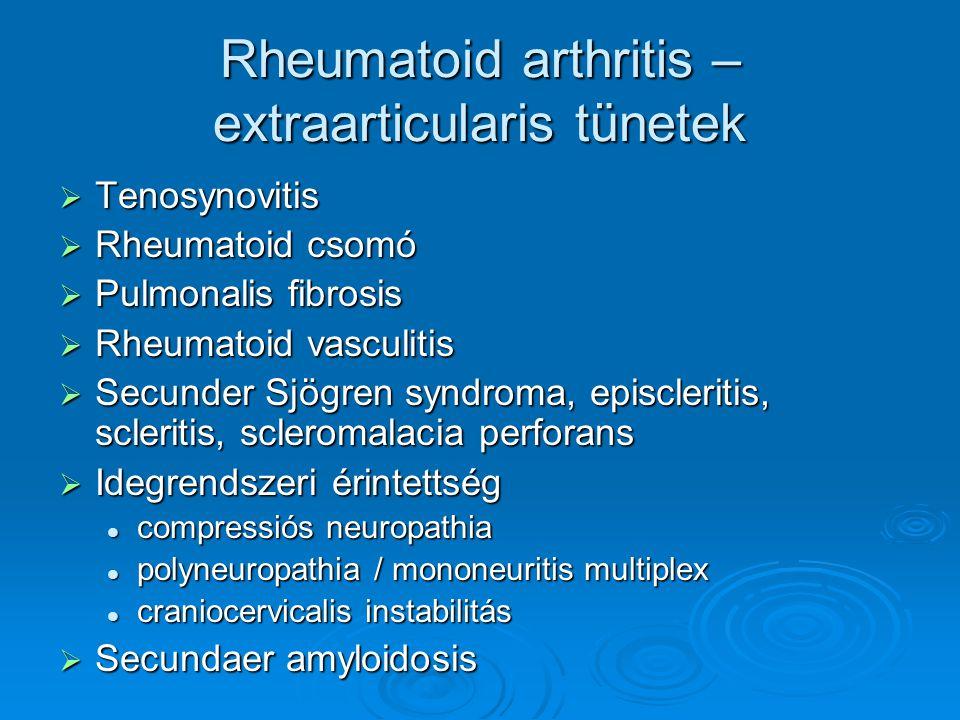 Rheumatoid arthritis – extraarticularis tünetek