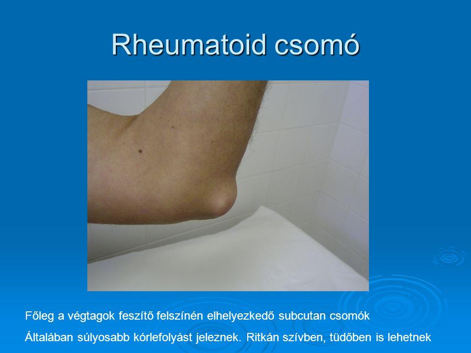 Rheumatoid csomó Főleg a végtagok feszítő felszínén elhelyezkedő subcutan csomók.
