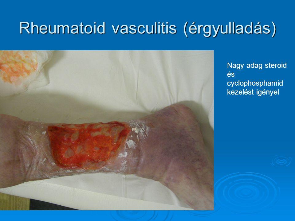 Rheumatoid vasculitis (érgyulladás)