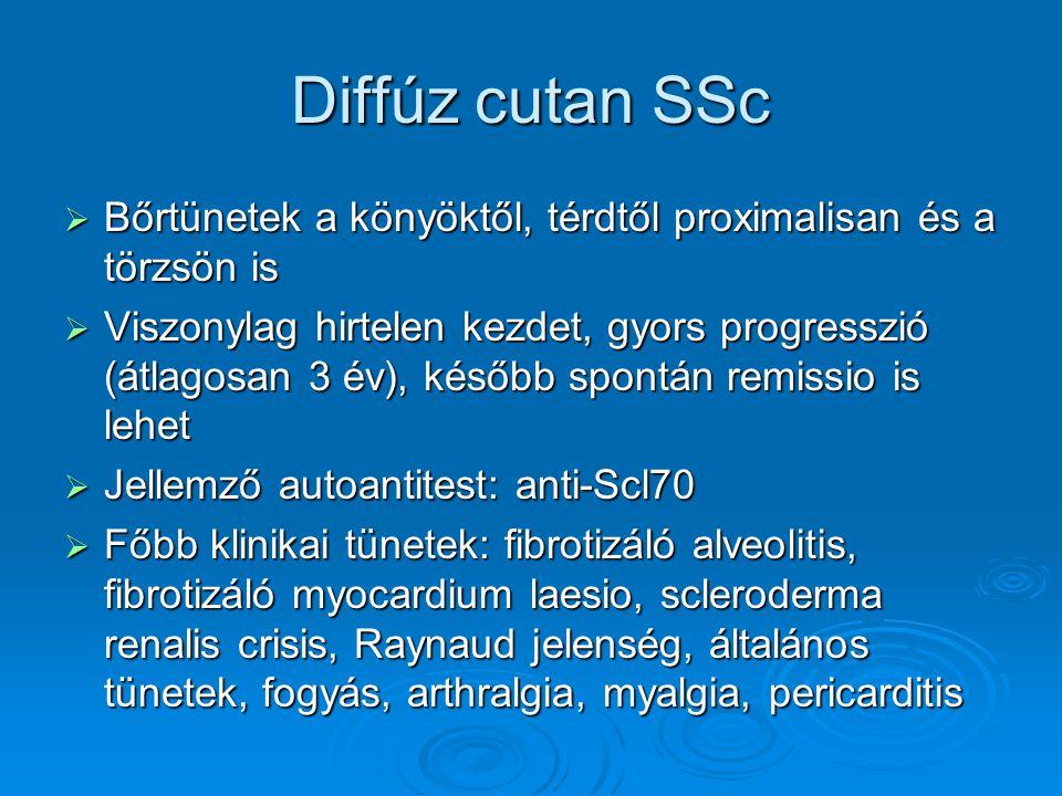 Diffúz cutan SSc Bőrtünetek a könyöktől, térdtől proximalisan és a törzsön is.