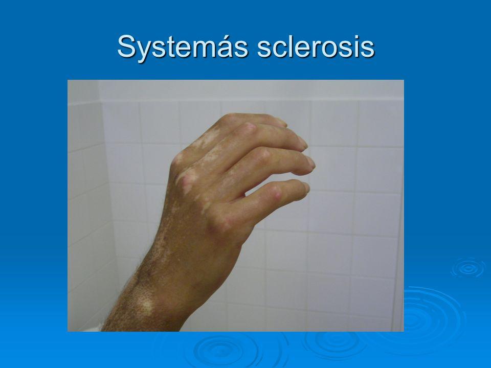 Systemás sclerosis