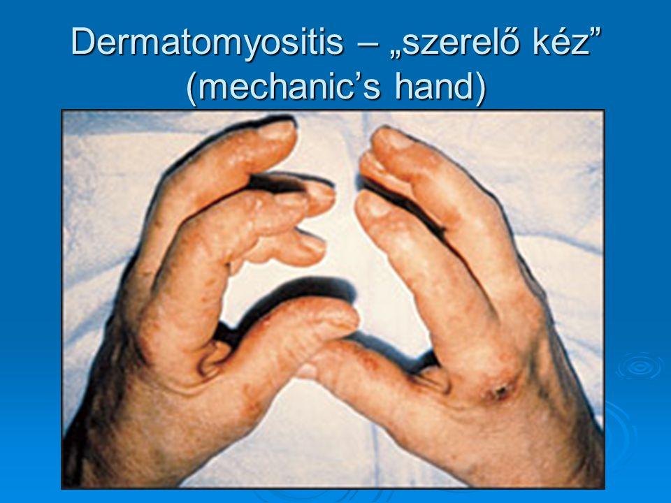 """Dermatomyositis – """"szerelő kéz (mechanic's hand)"""