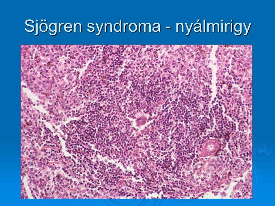 Sjögren syndroma - nyálmirigy
