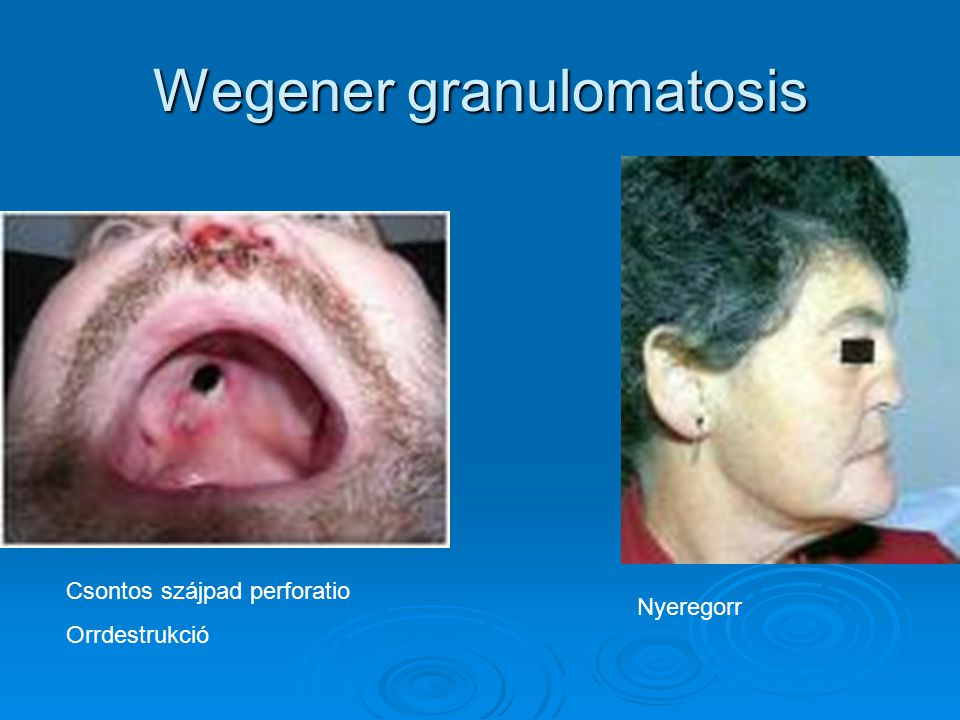 Wegener granulomatosis