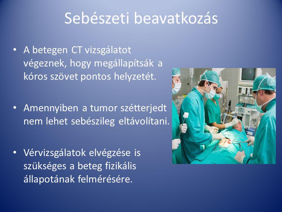 Sebészeti beavatkozás