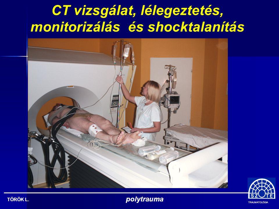 CT vizsgálat, lélegeztetés, monitorizálás és shocktalanítás