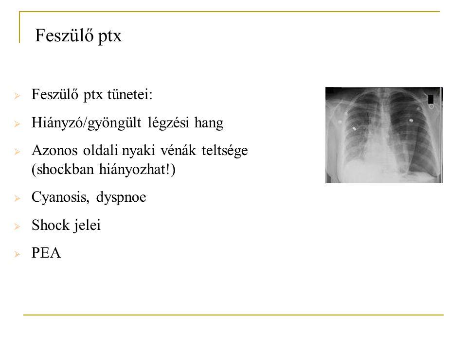 Feszülő ptx Feszülő ptx tünetei: Hiányzó/gyöngült légzési hang
