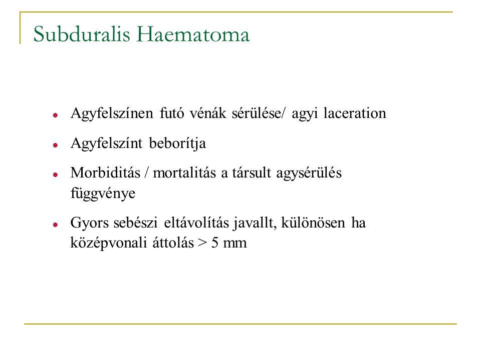 Subduralis Haematoma Agyfelszínen futó vénák sérülése/ agyi laceration