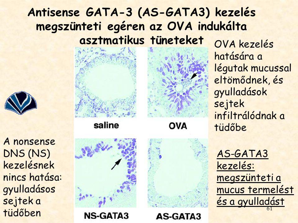Antisense GATA-3 (AS-GATA3) kezelés megszünteti egéren az OVA indukálta asztmatikus tüneteket
