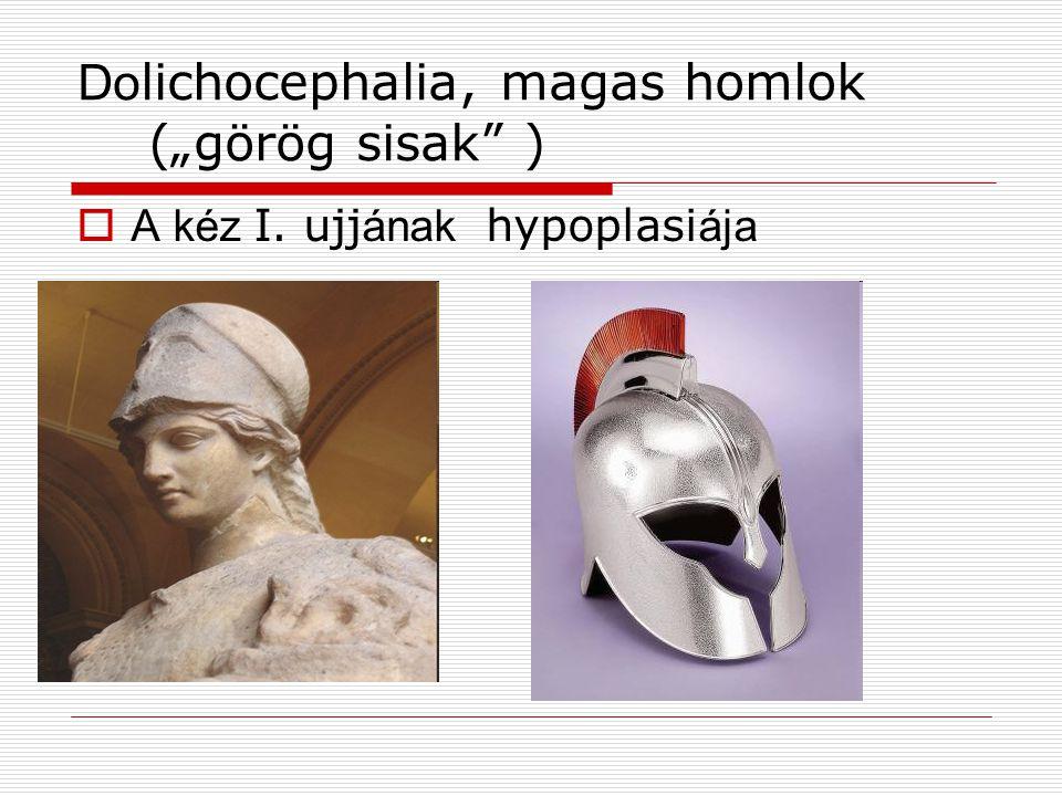 "Dolichocephalia, magas homlok (""görög sisak )"