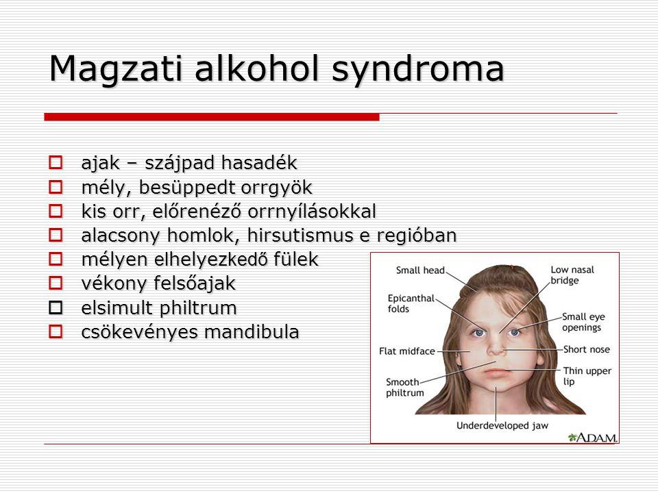 Magzati alkohol syndroma