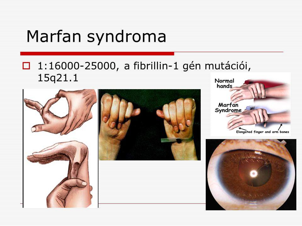 Marfan syndroma 1:16000-25000, a fibrillin-1 gén mutációi, 15q21.1
