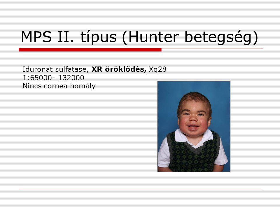 MPS II. típus (Hunter betegség)