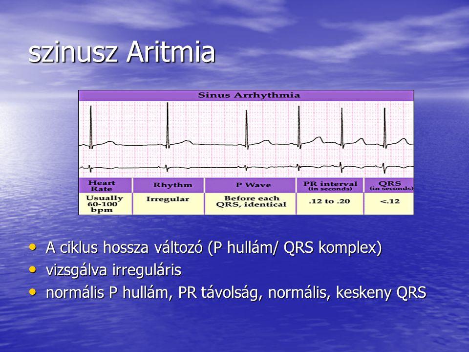 szinusz Aritmia A ciklus hossza változó (P hullám/ QRS komplex)