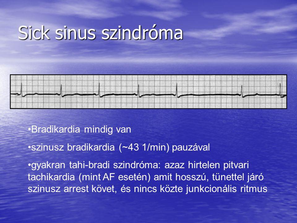 Sick sinus szindróma Bradikardia mindig van