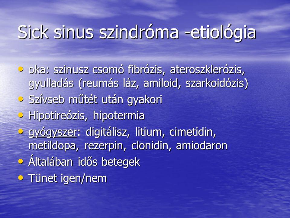 Sick sinus szindróma -etiológia