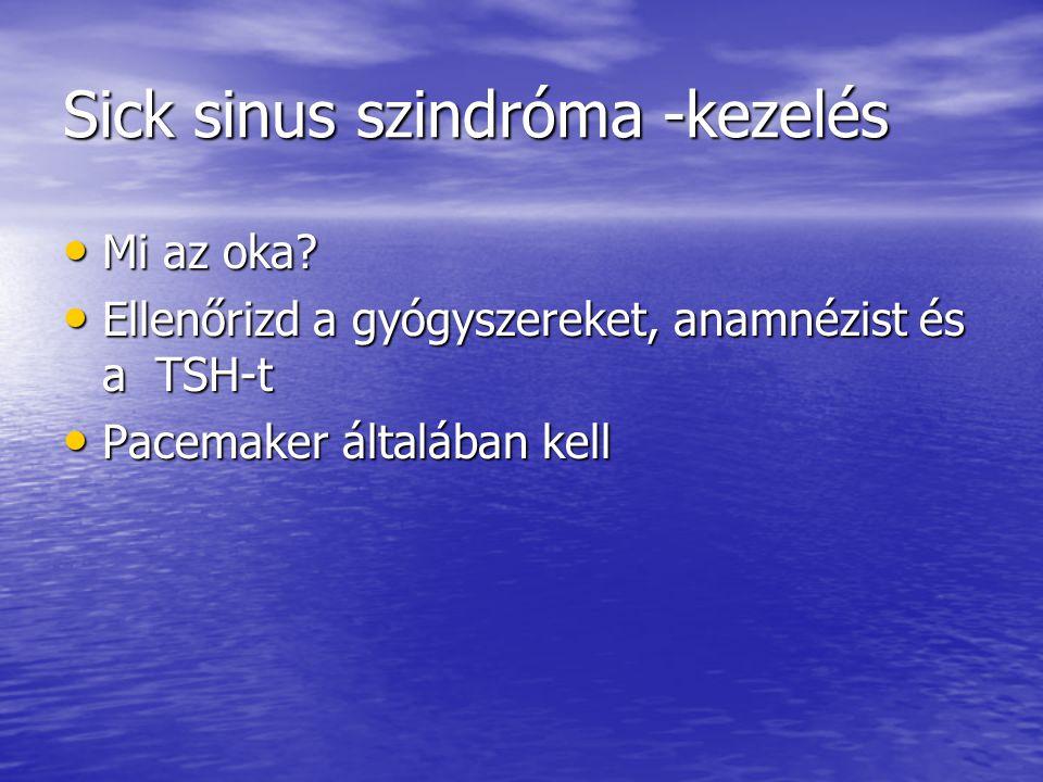 Sick sinus szindróma -kezelés