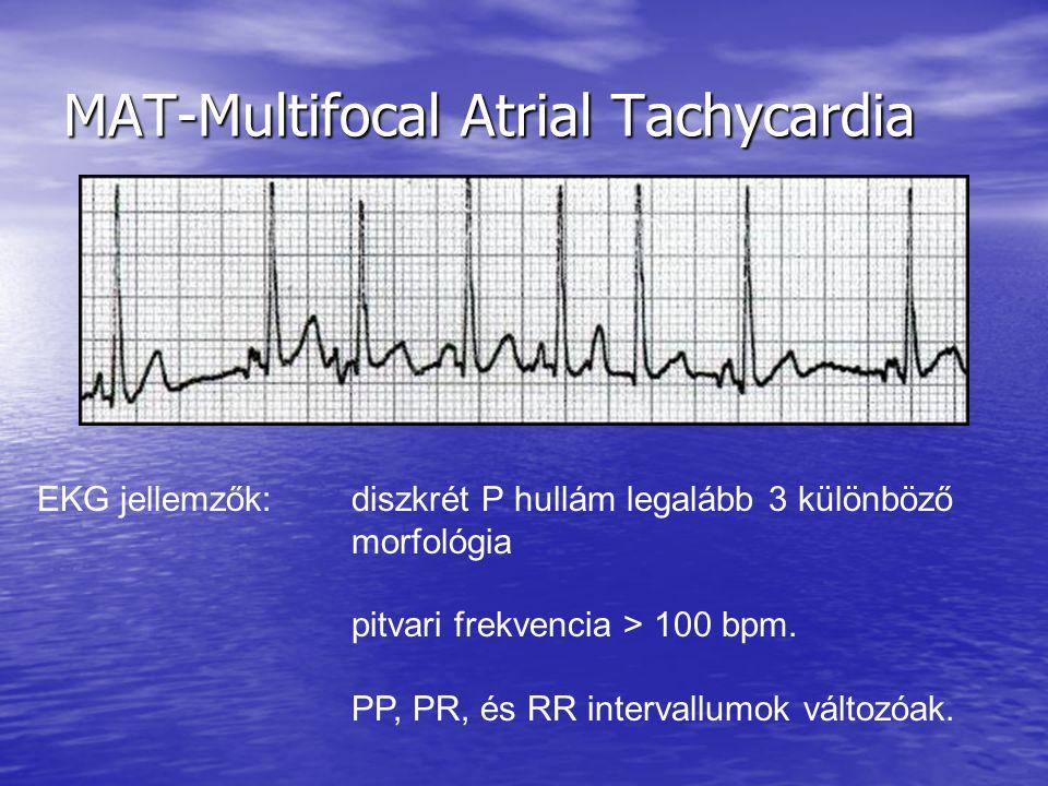 MAT-Multifocal Atrial Tachycardia
