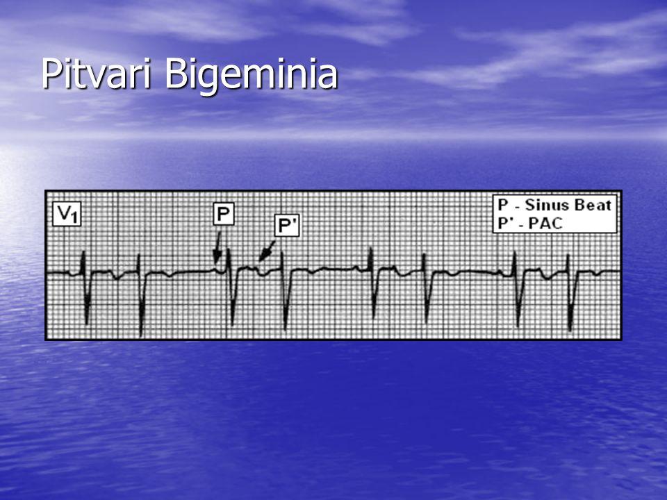 Pitvari Bigeminia