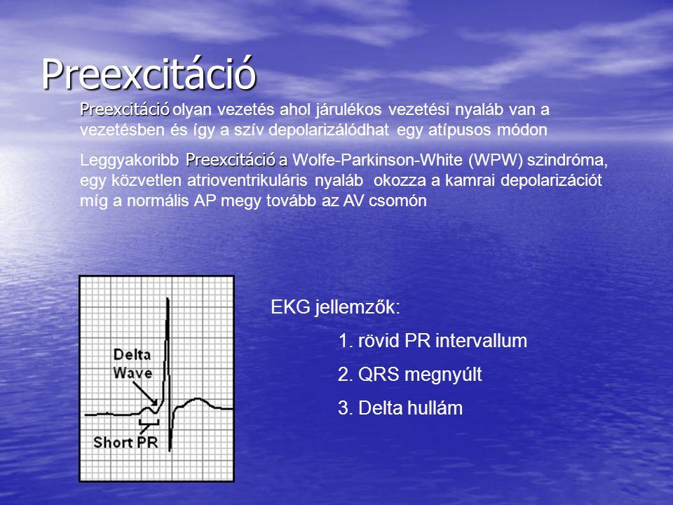 Preexcitáció EKG jellemzők: 1. rövid PR intervallum 2. QRS megnyúlt