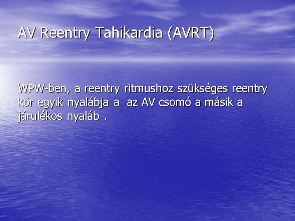 AV Reentry Tahikardia (AVRT)