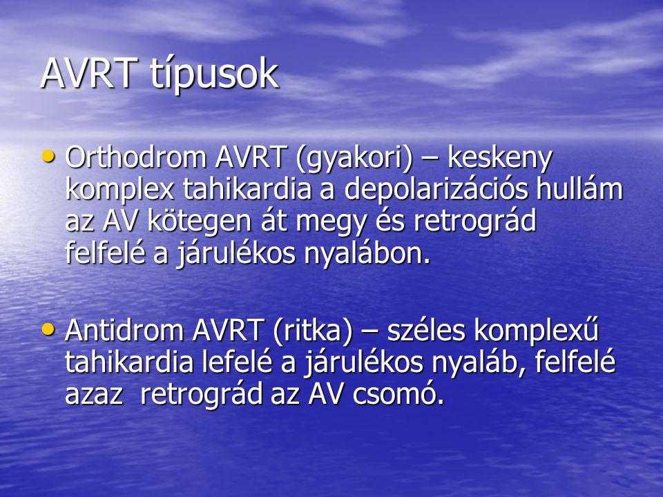 AVRT típusok
