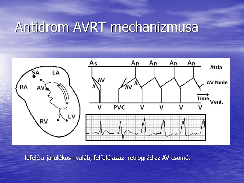 Antidrom AVRT mechanizmusa