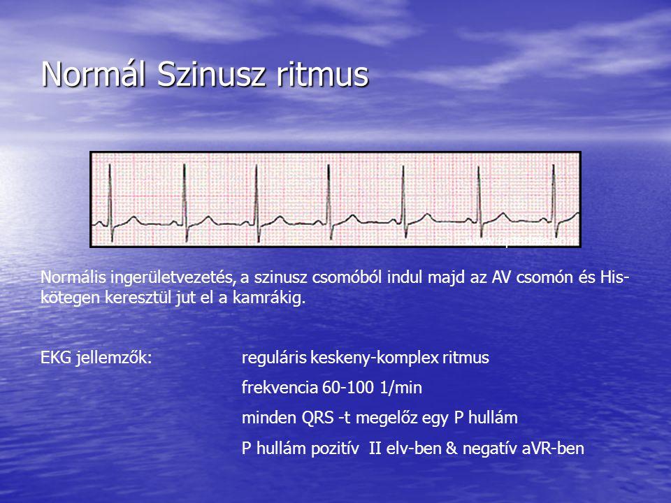 Normál Szinusz ritmus www.uptodate.com.