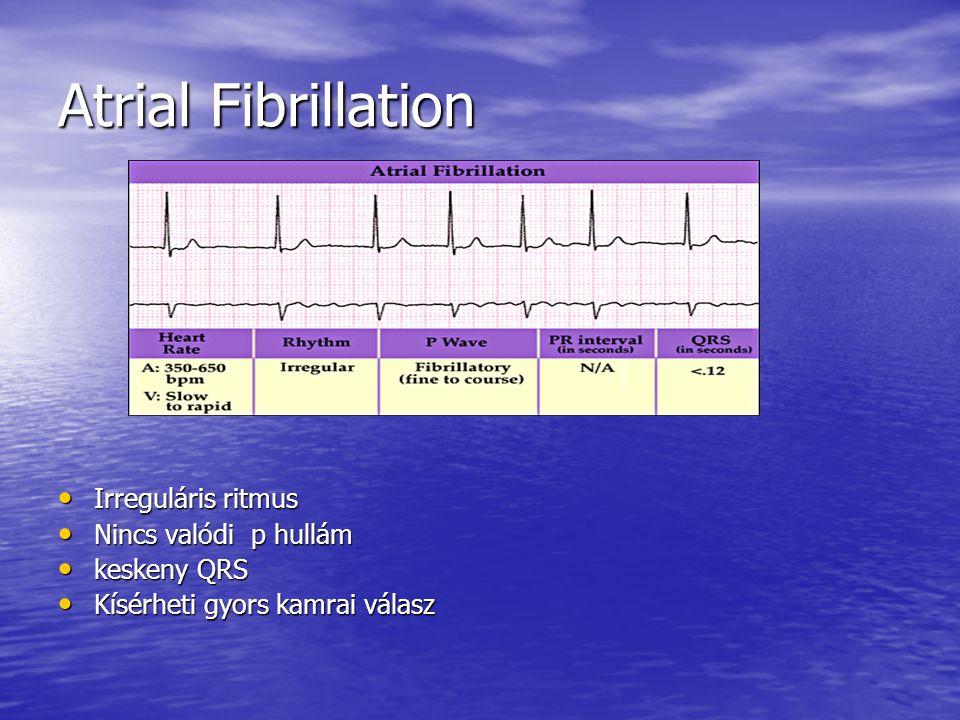 Atrial Fibrillation Irreguláris ritmus Nincs valódi p hullám
