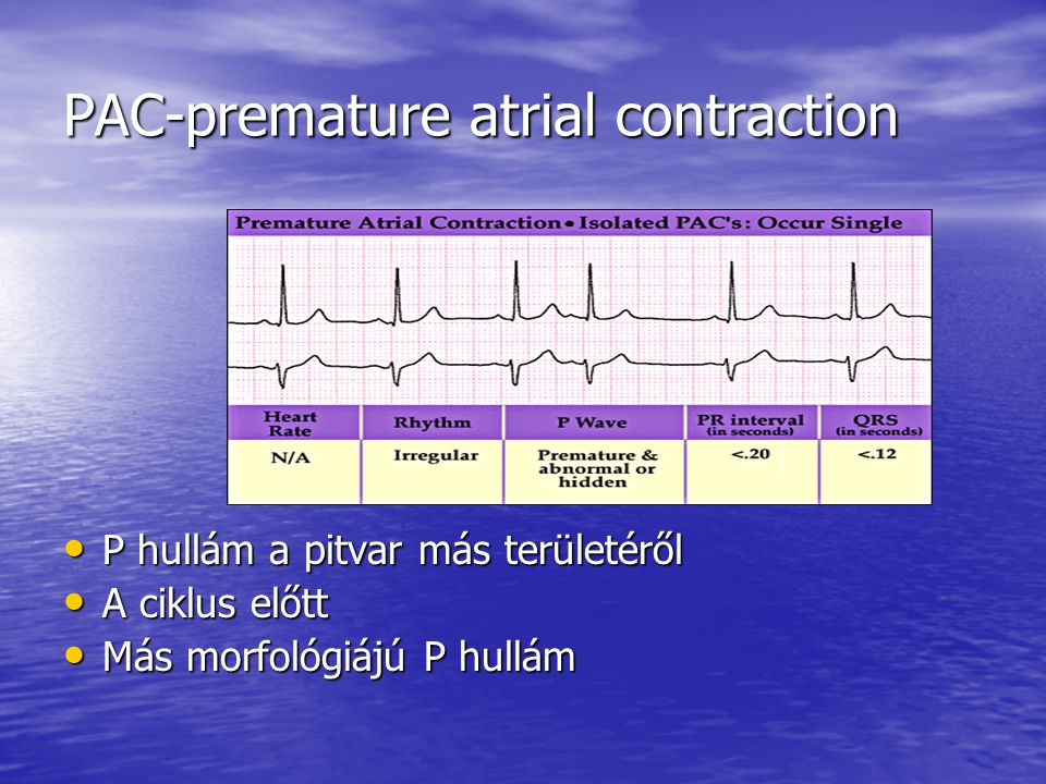 PAC-premature atrial contraction