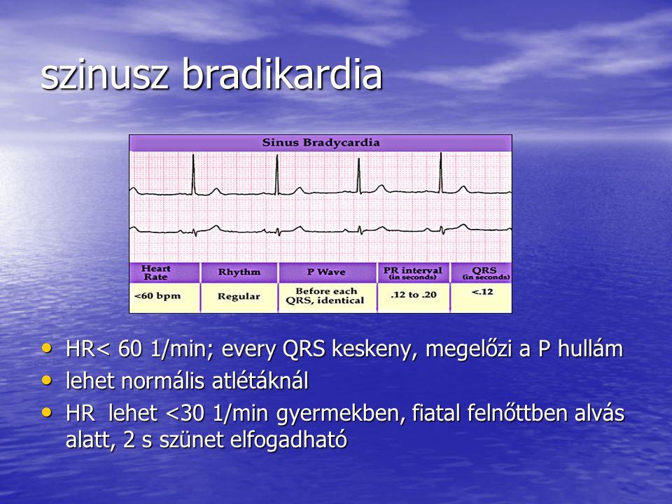 szinusz bradikardia HR< 60 1/min; every QRS keskeny, megelőzi a P hullám. lehet normális atlétáknál.