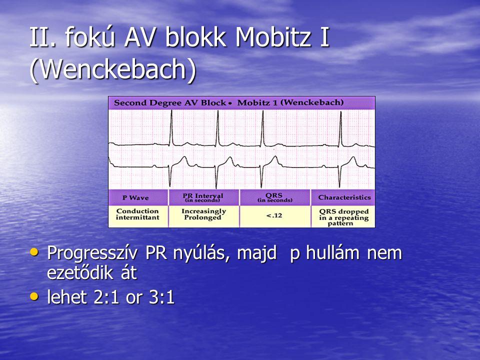 II. fokú AV blokk Mobitz I (Wenckebach)