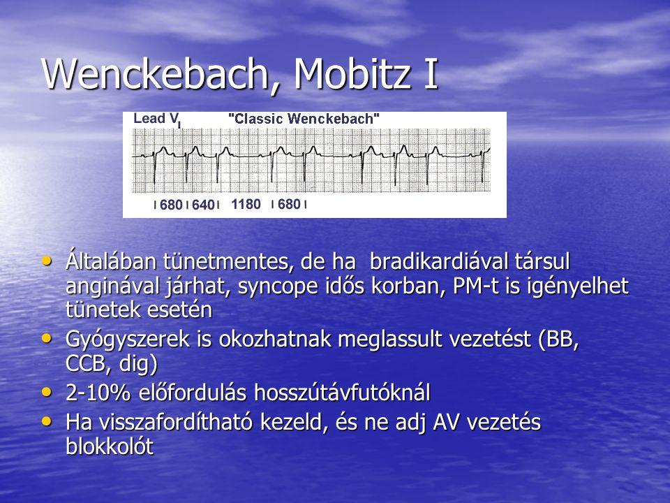 Wenckebach, Mobitz I Általában tünetmentes, de ha bradikardiával társul anginával járhat, syncope idős korban, PM-t is igényelhet tünetek esetén.